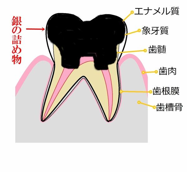 臼歯部-0