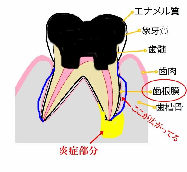 臼歯部-2