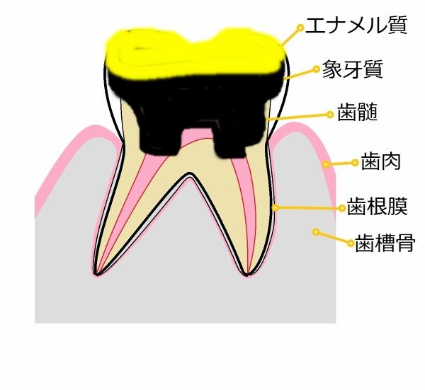 臼歯部-3
