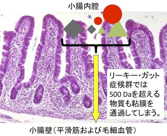 リーキーガット症候群の小腸吸収