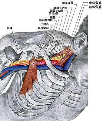 thoracic_outlet_syndrome.jpg