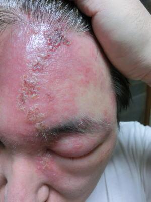 帯状疱疹 26日
