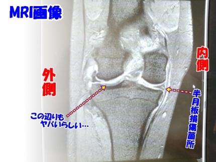 20140615半月板損傷MRI画像