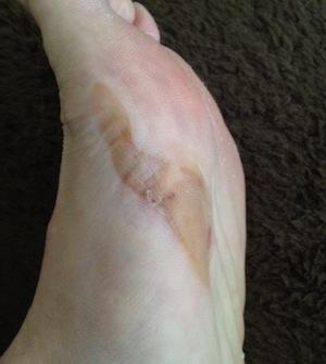 レース前の靴擦れはテーピングでがっちりカバーして、最後まで傷みも感じず走れたのですが靴擦れの皮のベロベロ面積が2倍以上に拡大!