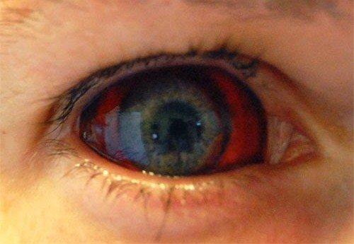 ebola-eye.jpg