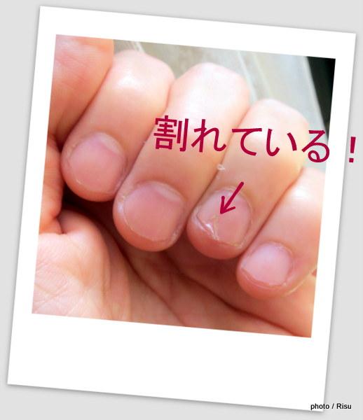 コラーゲン不足で爪割れ