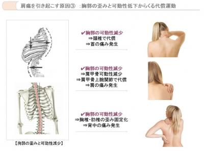 肩関節痛2