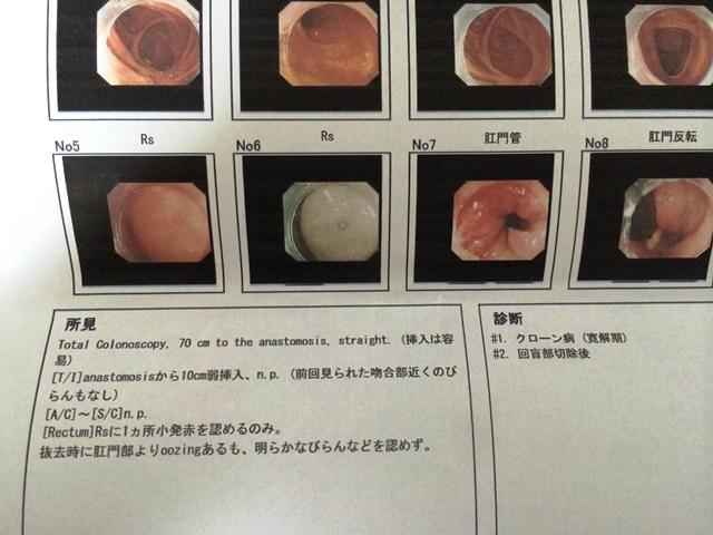 大腸内視鏡の結果